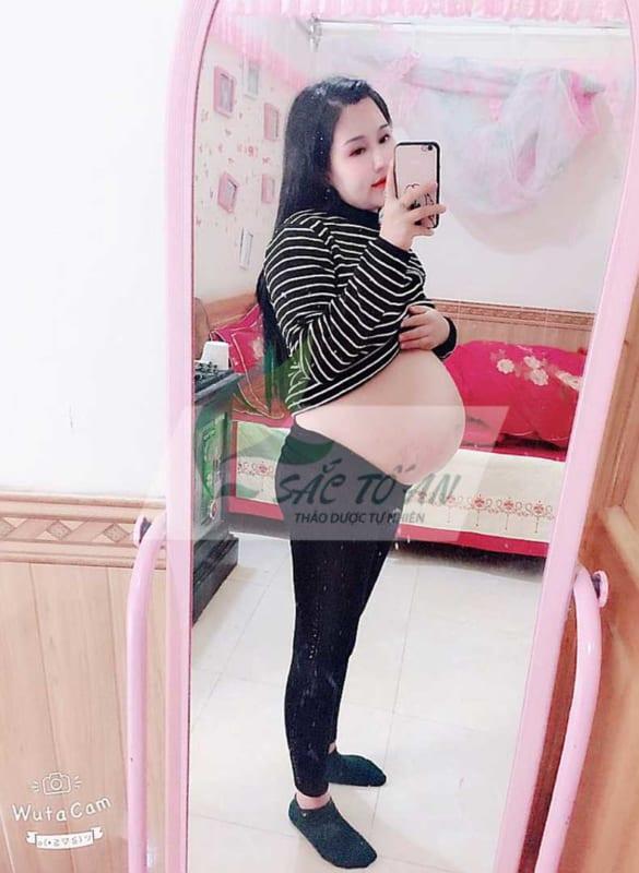 Rạn da bụng sau sinh của chị Phương Hà Nam