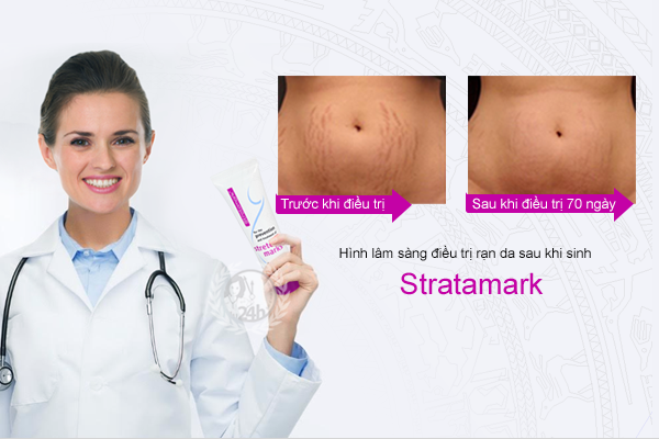 Tác dụng của kem trị rạn da Stratamark