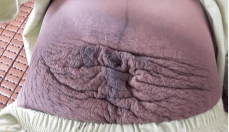 XÓT XA hình ảnh rạn da bụng của bà bầu sau khi sinh 1