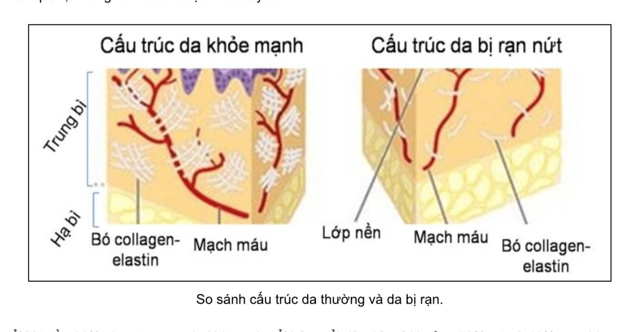 Chữa rạn da bằng tế bào gốc có thực sự hiệu quả như quảng cáo? 3