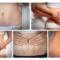 Chữa rạn da bằng tế bào gốc có thực sự hiệu quả như quảng cáo?