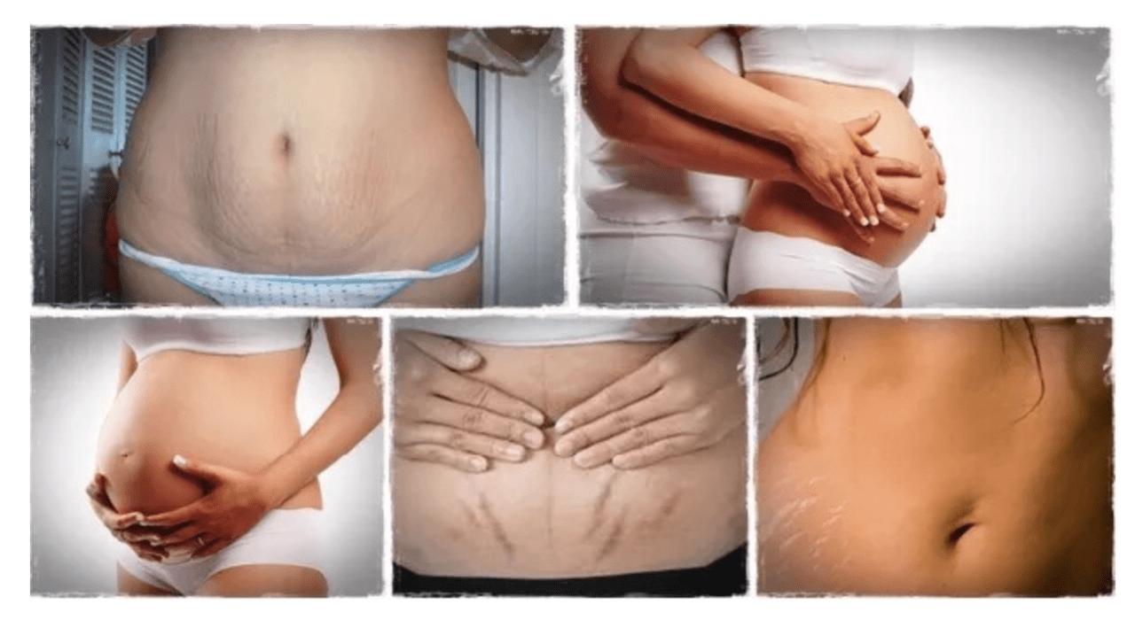 Chữa rạn da bằng tế bào gốc có thực sự hiệu quả như quảng cáo? 1