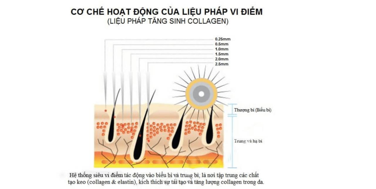 Chữa rạn da bằng tế bào gốc