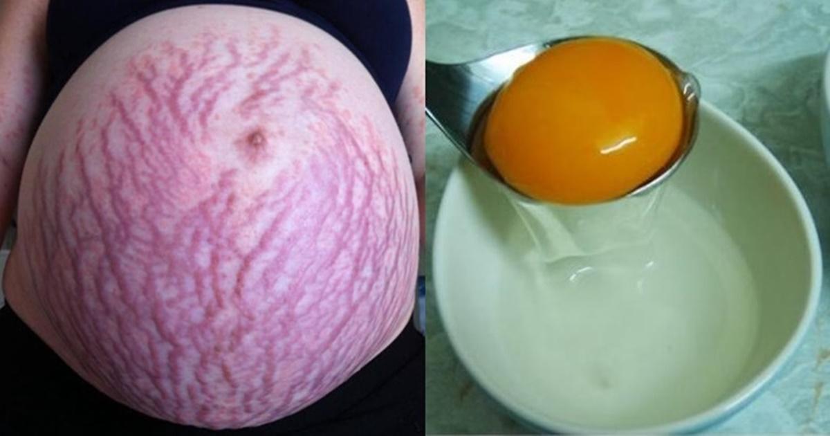 Lòng trắng trứng trị rạn da hiệu quả