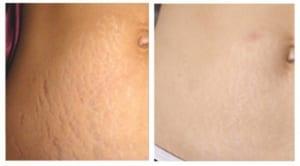 Giải đáp: Rạn da sau sinh có chữa được không ? 1