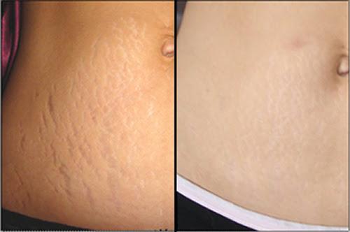 Cách chữa rạn da sau sinh tại nhà hiệu quả