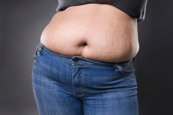 #11 cách trị rạn da cho người béo nhanh nhất tại nhà 17