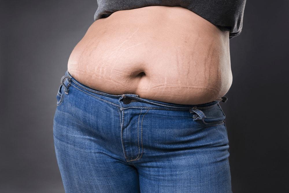 #11 cách trị rạn da cho người béo nhanh nhất tại nhà 1
