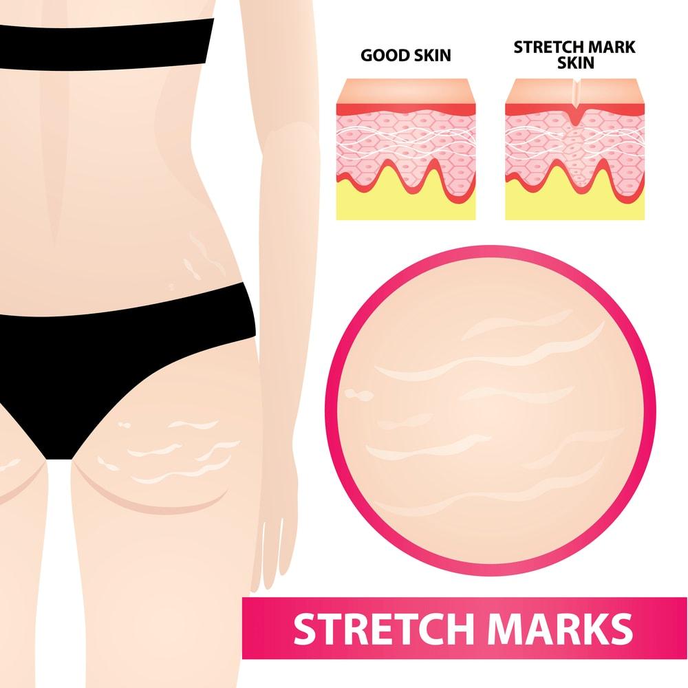 Cách trị rạn da cho người béo phì