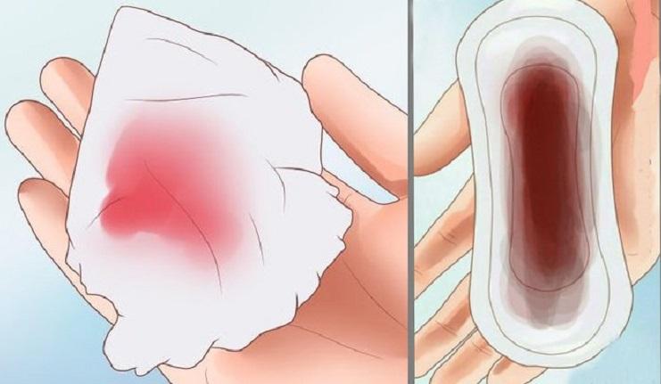 Hết sản dịch lại ra máu tươi có thể báo hiệu căn bệnh nguy hiểm