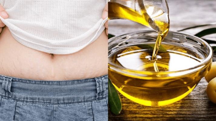 Bất ngờ với cách trị rạn da sau sinh bằng dầu oliu đơn giản mà hiệu quả 4