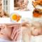 3 cách trị rạn da sau sinh bằng nghệ siêu hiệu quả TẠI NHÀ