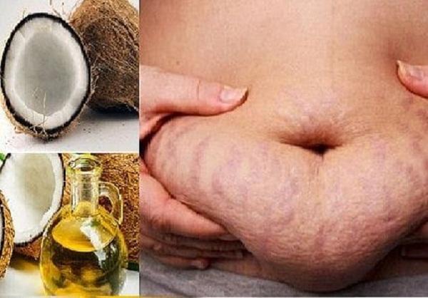Cách trị rạn da lâu năm bằng dầu dừa