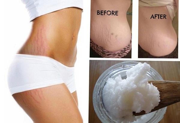 Trị rạn da lâu năm bằng dầu dừa kết hợp massage đều đặn giúp làm mờ vết rạn