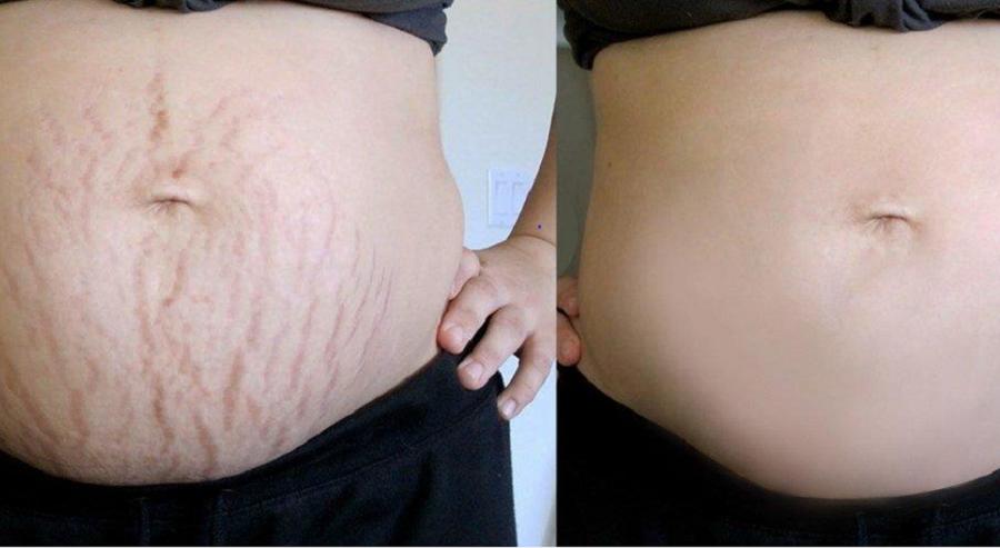 #5 cách trị rạn da ở tuổi dậy thì hiệu quả cho từng tình trạng da 1