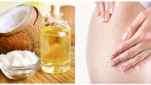 3 cách chữa rạn da ở tuổi dậy thì bằng dầu dừa đánh bay tận gốc 8