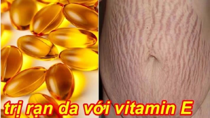 4 cách trị rạn da bằng vitamin E xua tan nỗi lo cho mẹ bầu 5