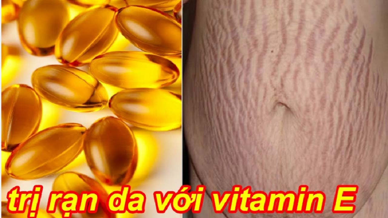 4 cách trị rạn da bằng vitamin E xua tan nỗi lo cho mẹ bầu 1