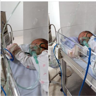 Virus RSV là gì? Trẻ sơ sinh bị nhiễm virus RSV có nguy hiểm, bị lại không? 6